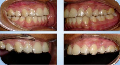 7 – Essix: Ortodontia invisível |